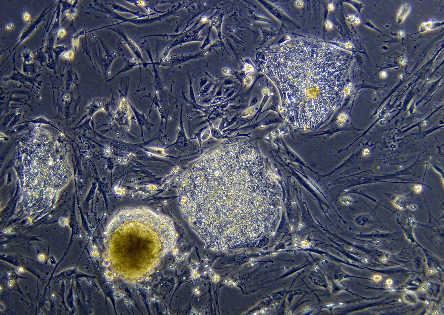 Undifferentiated human embryonic stem cells (hESCs). hESCs are derived ...: stemcellmed.yolasite.com/the-basics-of-stem-cells.php